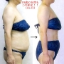 24日(月)、部分痩せ(二の腕orお腹)体験会を開催♪ 70歳の女性も この変化!